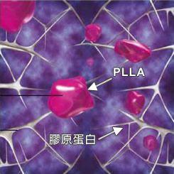 舒顏萃-3D聚左旋乳酸 2