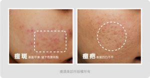 不同類型的痘疤痘斑,該如何保養治療呢? 2