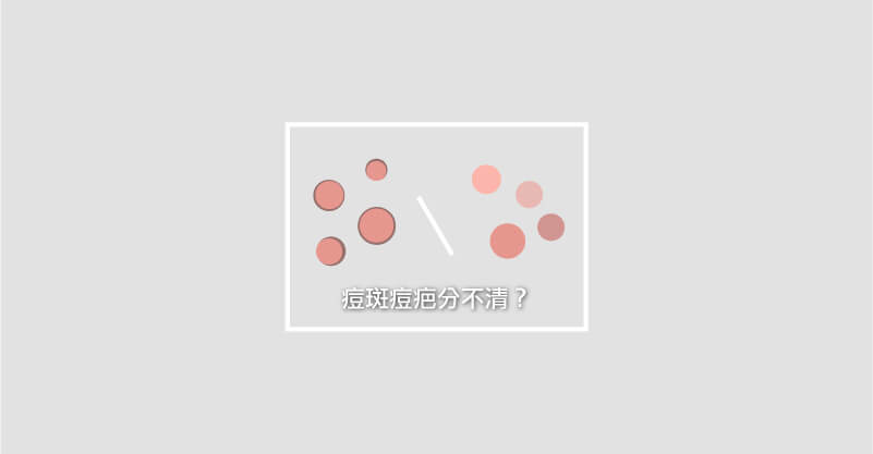 不同類型的痘疤痘斑,該如何保養治療呢? 1