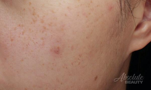 PicoSure蜂巢皮秒雷射|膠原蛋白再生、毛孔粗大、去除斑點 3